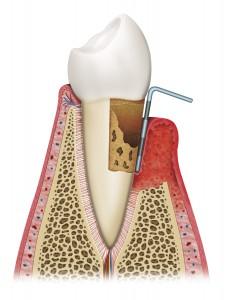 gingivitis con avanzadas
